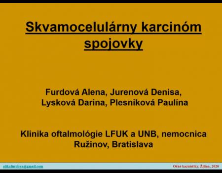 5. Skvamocelulárny karcinóm spojovky