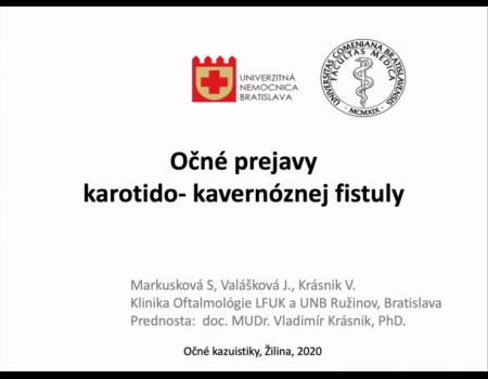 24. Očné prejavy karotido-kavernóznej fistuly (kazuistika)