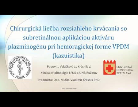 25. Chirurgická liečba rozsiahleho krvácania so subretinálnou aplikáciou aktiváru plazminogénu pri hemoragickej forme VPDM