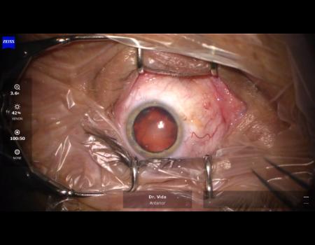 30. Optic capture pri subluxovanej katarakte